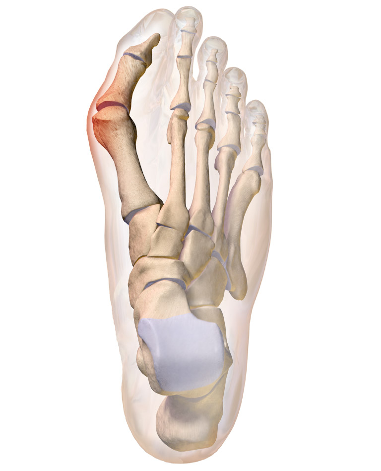 Bunion on the large toe of the right foot