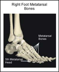 Metatarsal bones of the foot